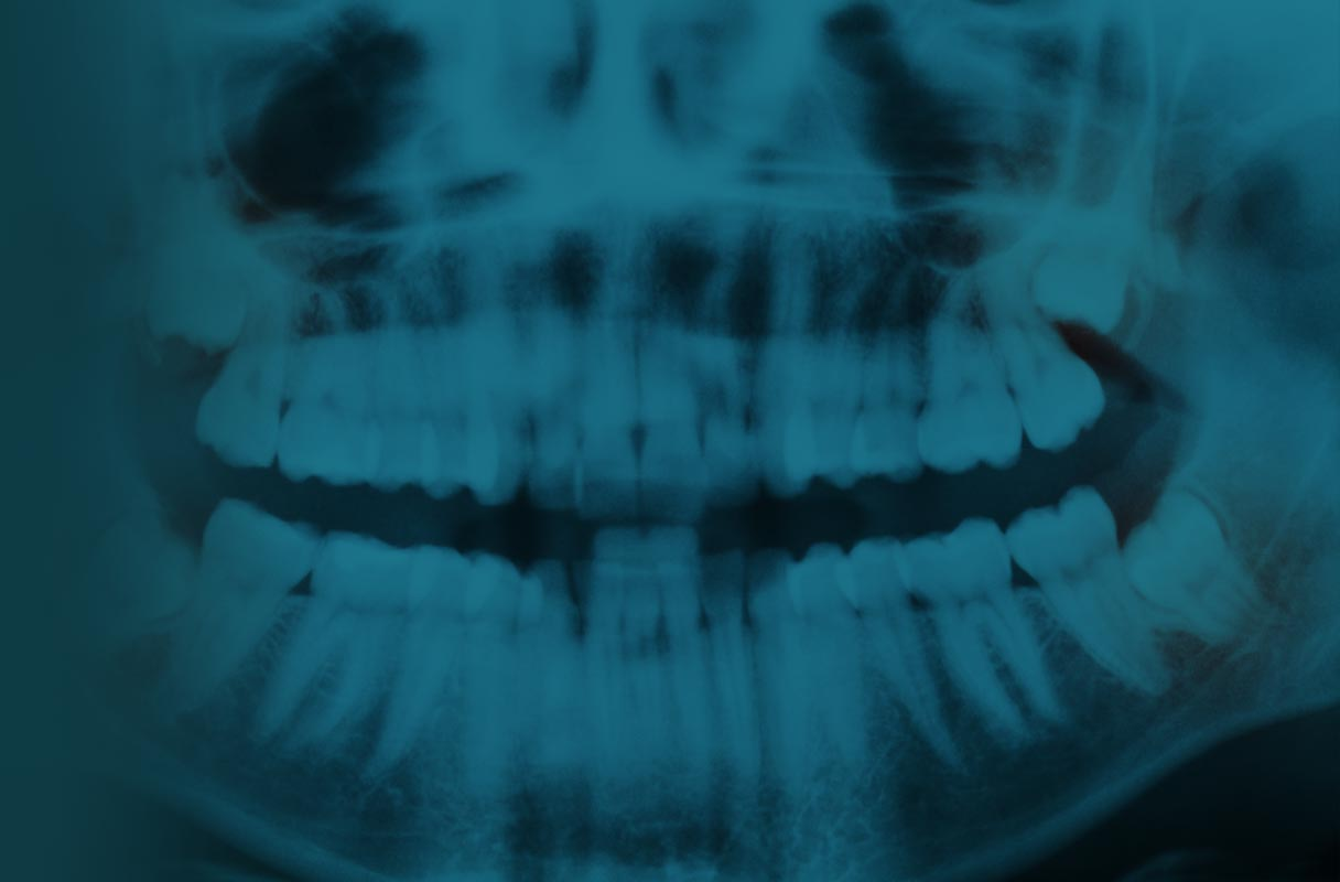 After Impacted Tooth